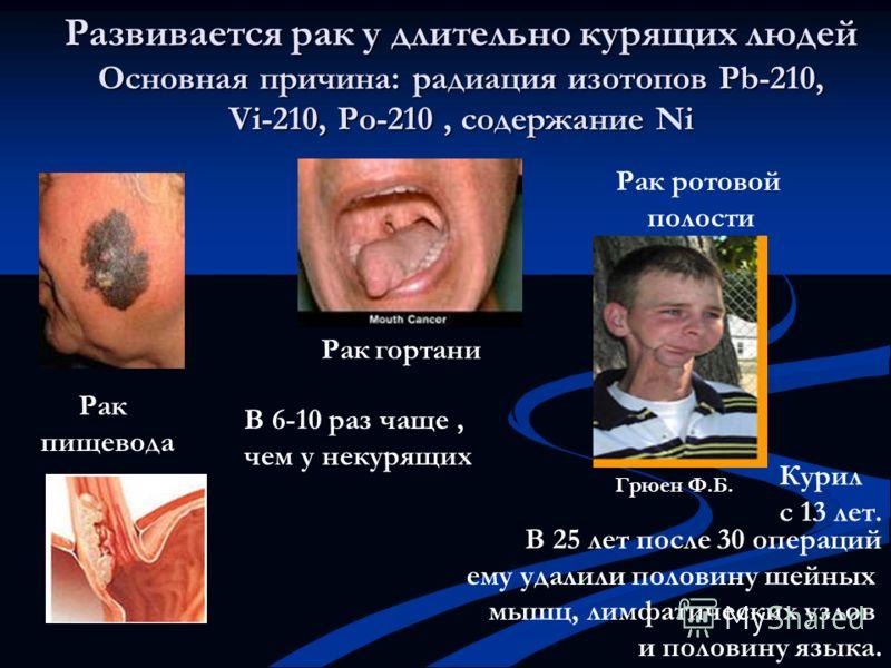 Рак пищевода Развивается рак у длительно курящих людей Основная причина: радиация изотопов Рb-210, Vi-210, Po-210, содержание Ni Рак гортани В 6-10 раз чаще, чем у некурящих Рак ротовой полости В 25 лет после 30 операций ему удалили половину шейных м