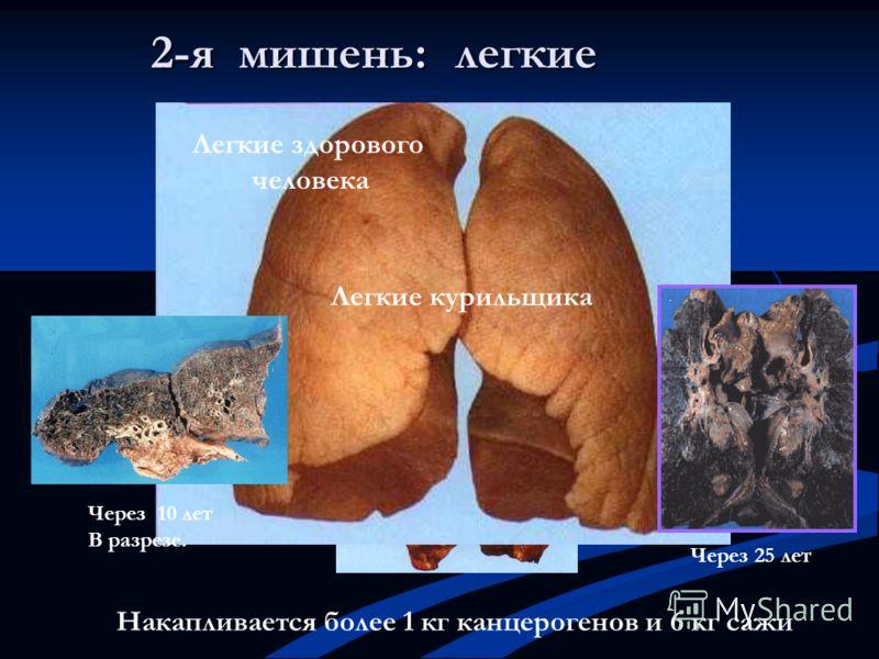 легкие Легкие курильщика Через 10 лет В разрезе. Через 25 лет Накапливается более 1 кг канцерогенов и 6 кг сажи 2-я мишень: Легкие здорового человека