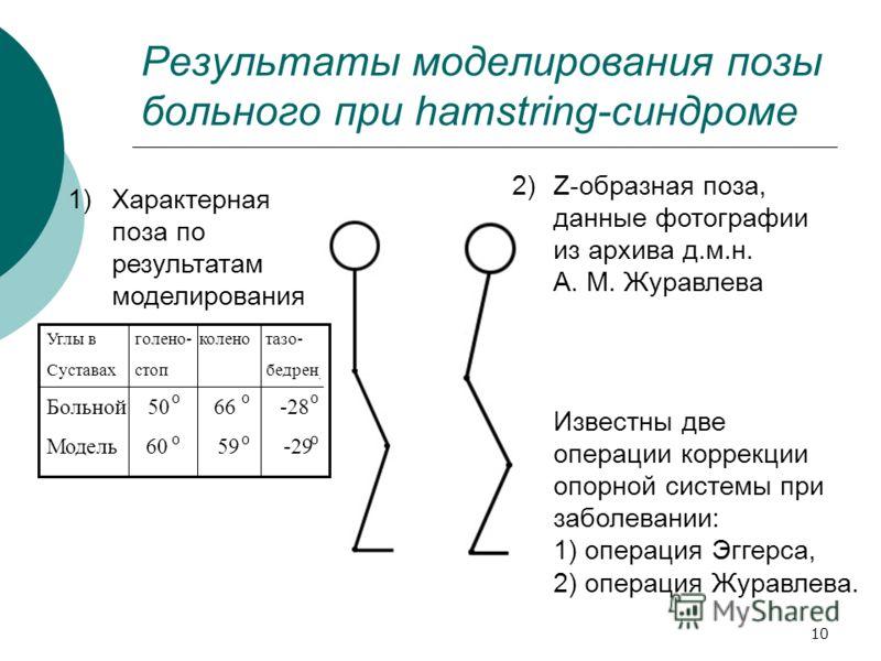 10 Результаты моделирования позы больного при hamstring-синдроме 1)Характерная поза по результатам моделирования Z-образная поза, данные фотографии из архива д.м.н. А. М. Журавлева 2) Известны две операции коррекции опорной системы при заболевании: 1