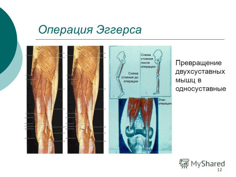 12 Операция Эггерса Превращение двухсуставных мышц в односуставные
