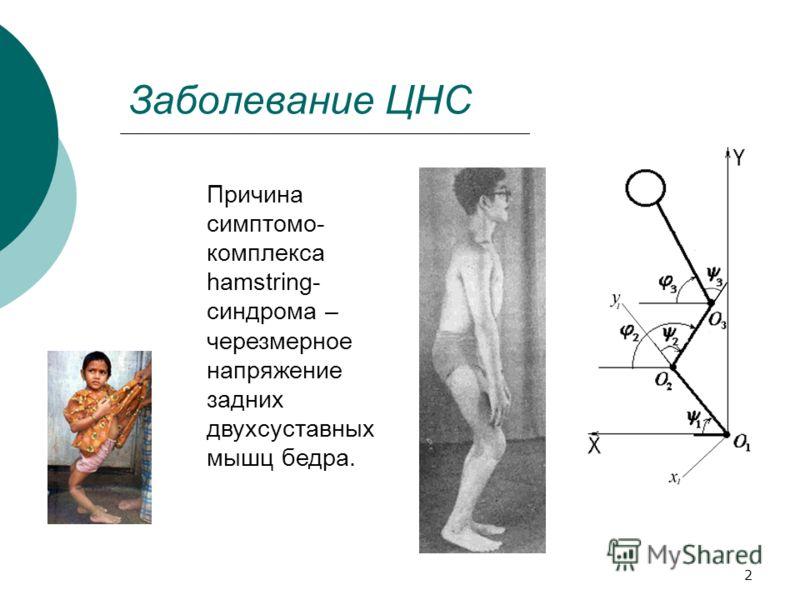 2 Заболевание ЦНС Причина симптомо- комплекса hamstring- синдрома – черезмерное напряжение задних двухсуставных мышц бедра.
