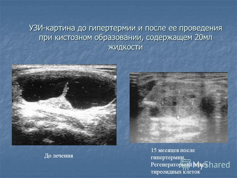 УЗИ-картина до гипертермии и после ее проведения при кистозном образовании, содержащем 20мл жидкости 15 месяцев после гипертермии. Регенераторный пласт тиреоидных клеток До лечения