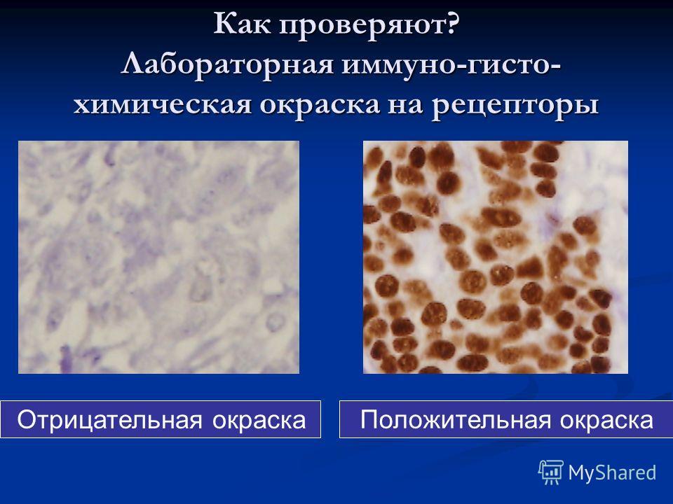 Как проверяют? Лабораторная иммуно-гисто- химическая окраска на рецепторы Отрицательная окраска Положительная окраска