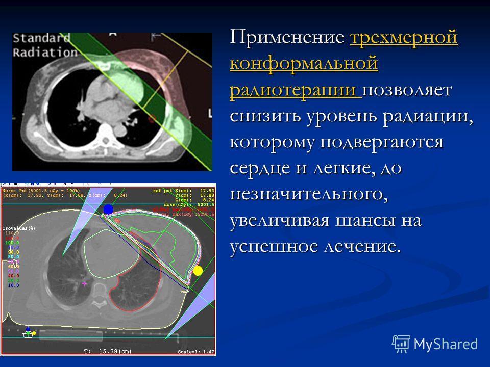 Применение трехмерной конформальной радиотерапии позволяет снизить уровень радиации, которому подвергаются сердце и легкие, до незначительного, увеличивая шансы на успешное лечение. трехмерной конформальной радиотерапии трехмерной конформальной радио