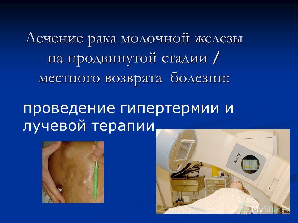 Лечение рака молочной железы на продвинутой стадии / местного возврата болезни: проведение гипертермии и лучевой терапии