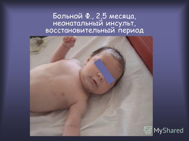 Больной Ф., 2,5 месяца, неонатальный инсульт, восстановительный период