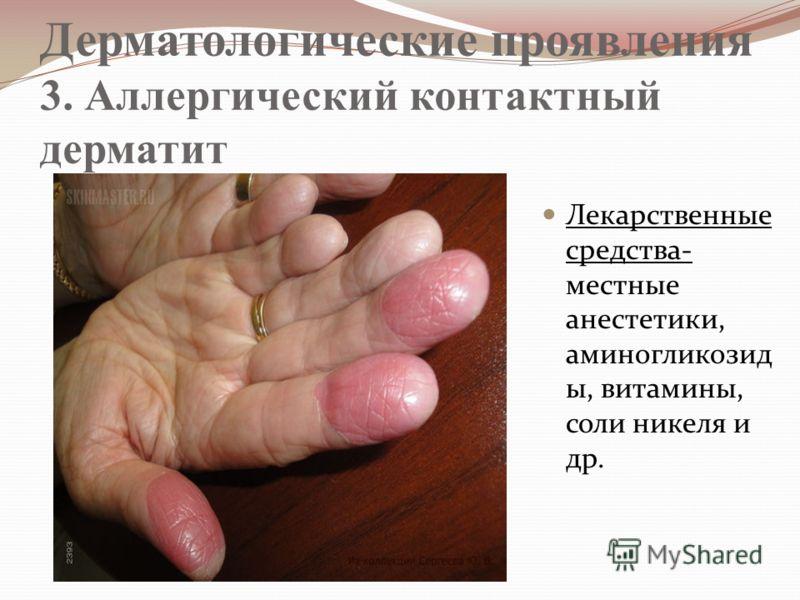 Дерматологические проявления 3. Аллергический контактный дерматит Лекарственные средства- местные анестетики, аминогликозид ы, витамины, соли никеля и др.