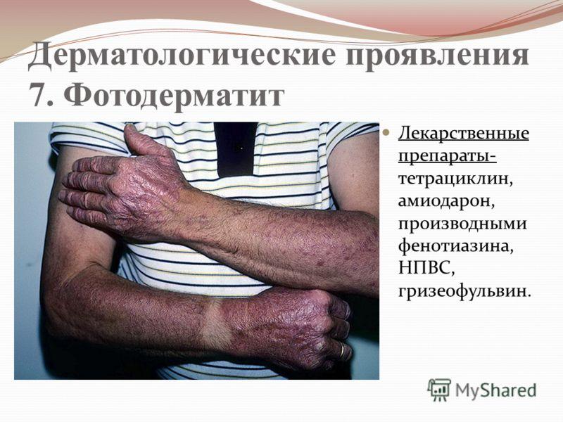 Дерматологические проявления 7. Фотодерматит Лекарственные препараты- тетрациклин, амиодарон, производными фенотиазина, НПВС, гризеофульвин.