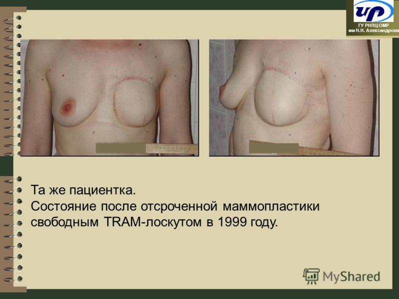 ГУ РНПЦ ОМР им Н.Н. Александрова Та же пациентка. Состояние после отсроченной маммопластики свободным TRAM-лоскутом в 1999 году.