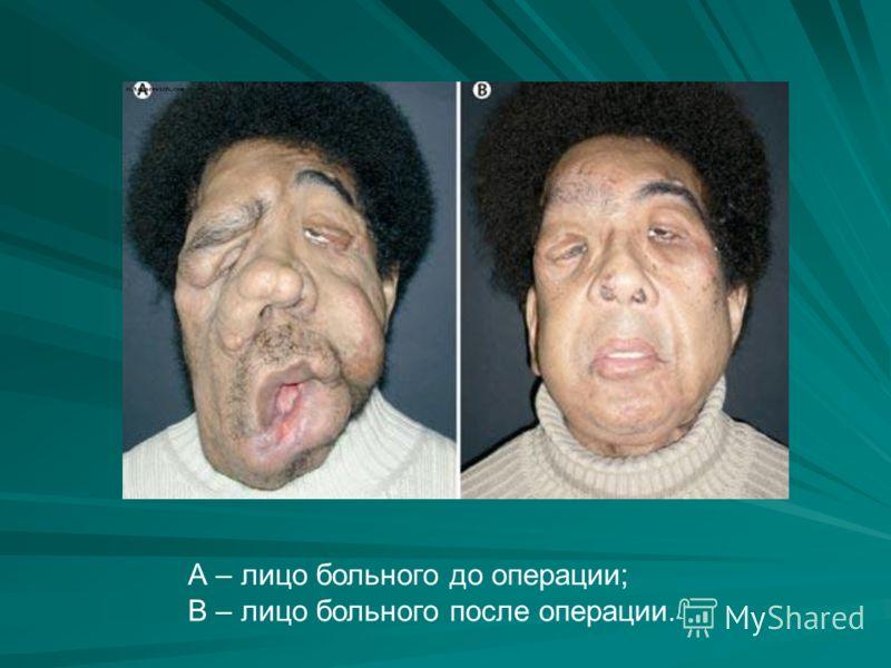 А – лицо больного до операции; В – лицо больного после операции.