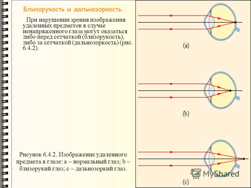 Рисунок 6.4.2. Изображение удаленного предмета в глазе: a – нормальный глаз; b – близорукий глаз; с – дальнозоркий глаз. Близорукость и дальнозоркость. При нарушении зрения изображения удаленных предметов в случае ненапряженного глаза могут оказаться