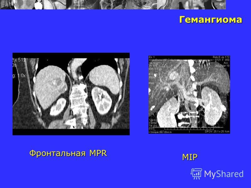 Гемангиома Фронтальная MPR MIP