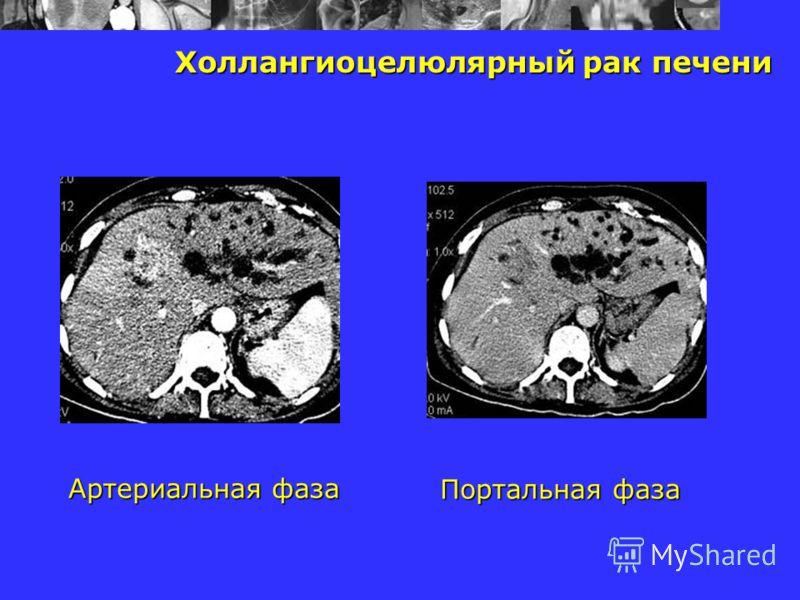 Холлангиоцелюлярный рак печени Артериальная фаза Портальная фаза