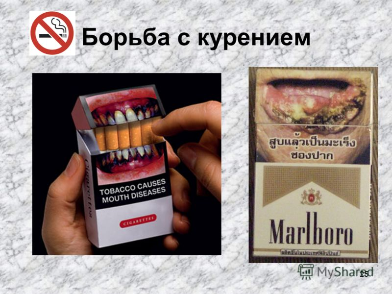 25 Борьба с курением