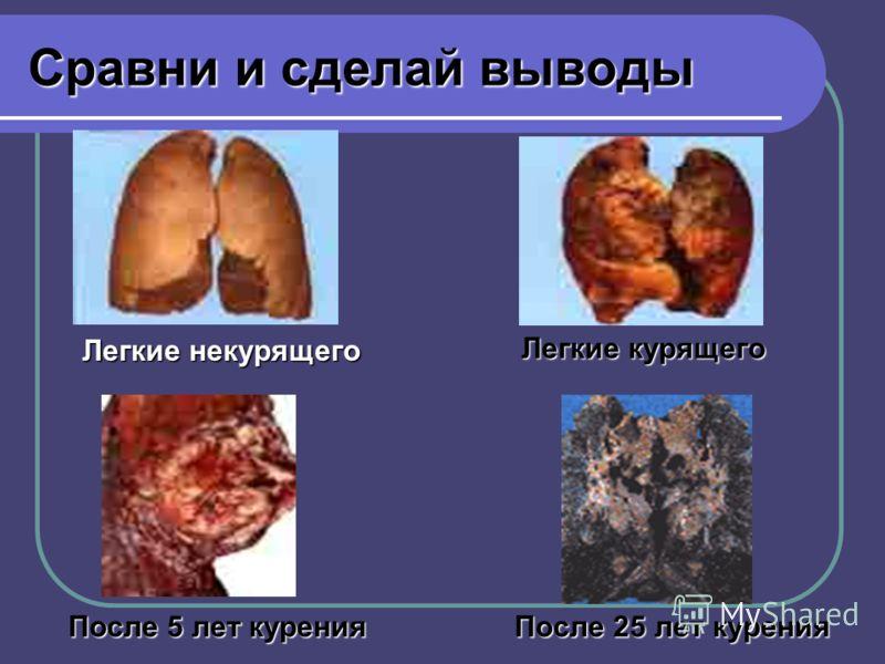 Сравни и сделай выводы После 5 лет курения После 25 лет курения Легкие некурящего Легкие курящего