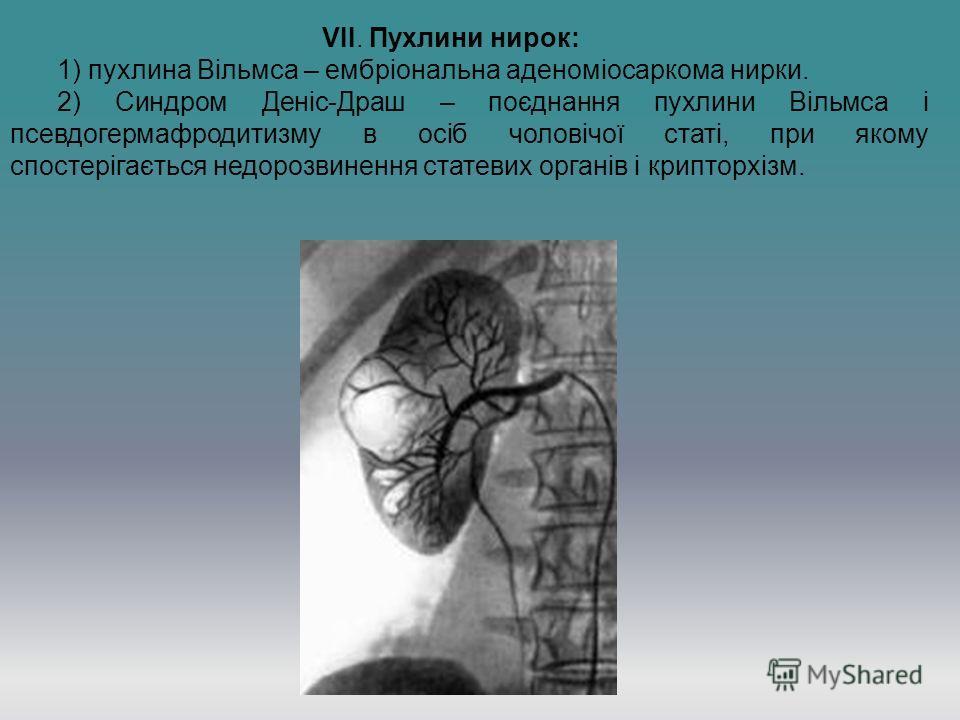VII. Пухлини нирок: 1) пухлина Вільмса – ембріональна аденоміосаркома нирки. 2) Синдром Деніс-Драш – поєднання пухлини Вільмса і псевдогермафродитизму в осіб чоловічої статі, при якому спостерігається недорозвинення статевих органів і крипторхізм.