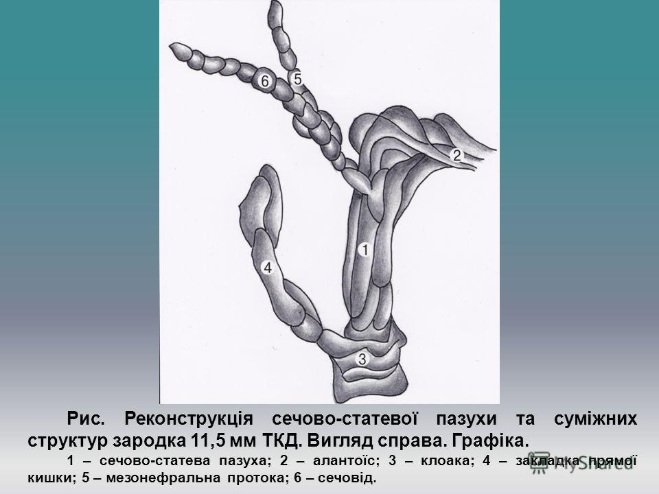 Рис. Реконструкція сечово-статевої пазухи та суміжних структур зародка 11,5 мм ТКД. Вигляд справа. Графіка. 1 – сечово-статева пазуха; 2 – алантоїс; 3 – клоака; 4 – закладка прямої кишки; 5 – мезонефральна протока; 6 – сечовід.