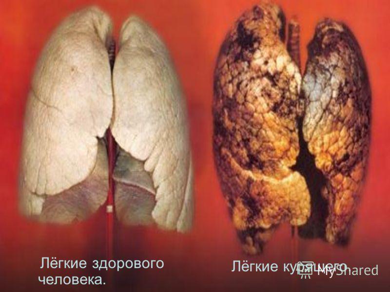 Лёгкие здорового человека. Лёгкие курящего.