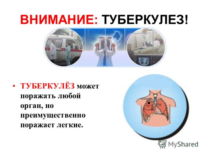 ТУБЕРКУЛЁЗ может поражать любой орган, но преимущественно поражает легкие.