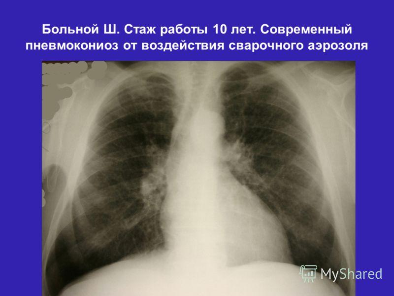 Больной Ш. Стаж работы 10 лет. Современный пневмокониоз от воздействия сварочного аэрозоля