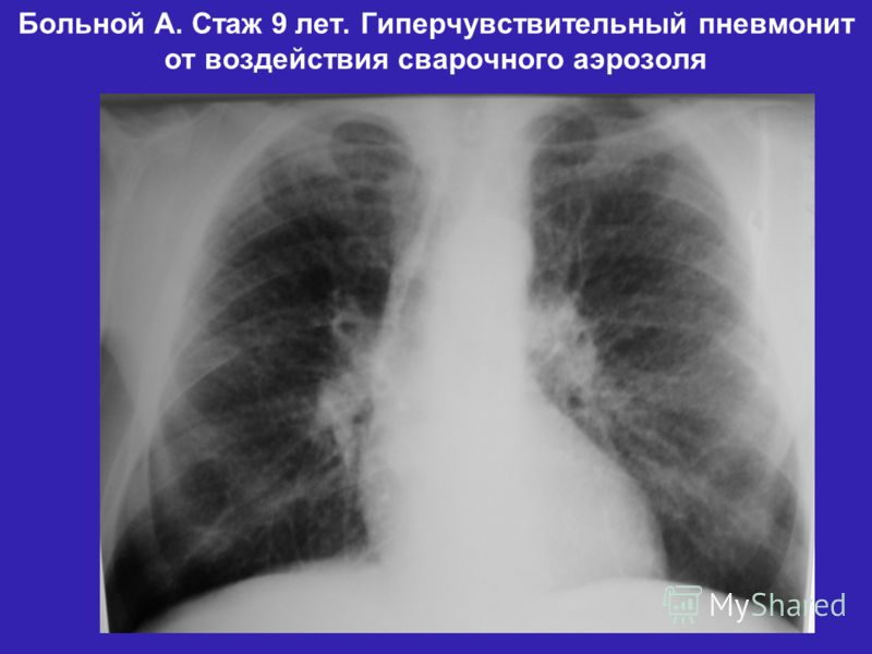 Больной А. Стаж 9 лет. Гиперчувствительный пневмонит от воздействия сварочного аэрозоля