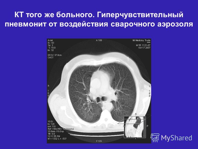 КТ того же больного. Гиперчувствительный пневмонит от воздействия сварочного аэрозоля