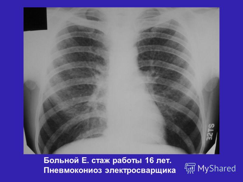 Пневмокониоз фото