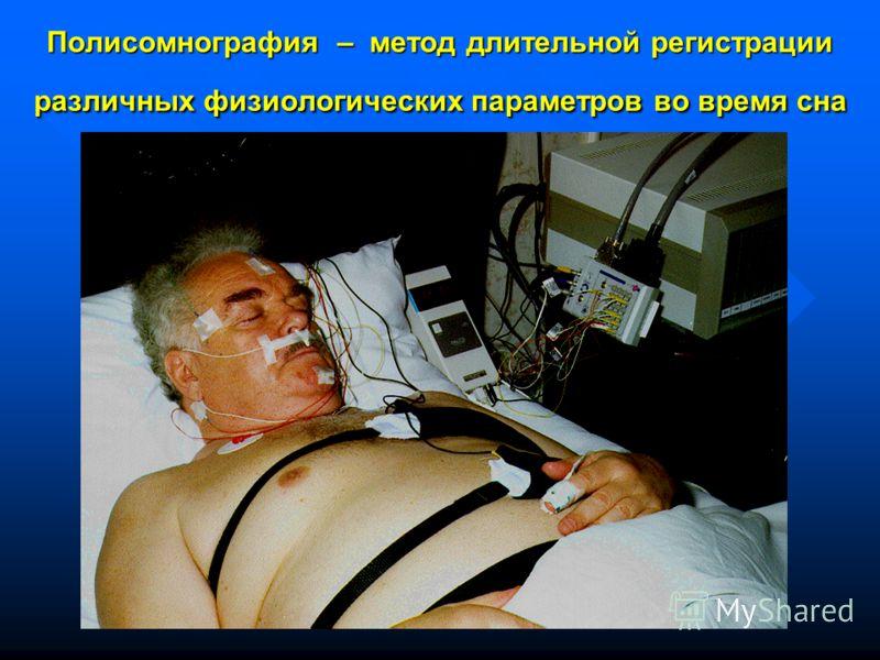 Полисомнография – метод длительной регистрации различных физиологических параметров во время сна