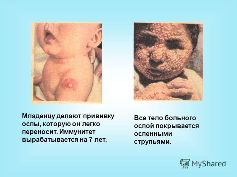 Младенцу делают прививку оспы, которую он легко переносит. Иммунитет вырабатывается на 7 лет. Все тело больного оспой покрывается оспенными струпьями.