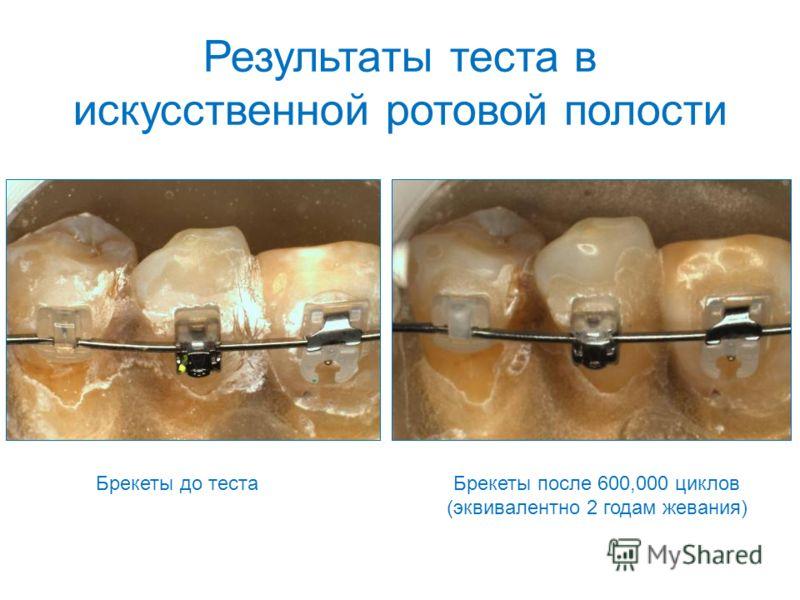 Брекеты до теста Результаты теста в искусственной ротовой полости Брекеты после 600,000 циклов (эквивалентно 2 годам жевания)