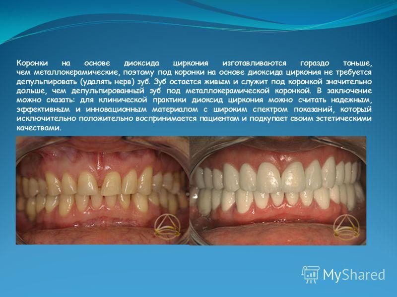 Коронки на основе диоксида циркония изготавливаются гораздо тоньше, чем металлокерамические, поэтому под коронки на основе диоксида циркония не требуется депульпировать (удалять нерв) зуб. Зуб остается живым и служит под коронкой значительно дольше,