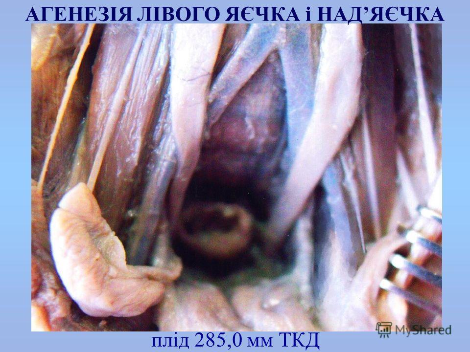 плід 285,0 мм ТКД АГЕНЕЗІЯ ЛІВОГО ЯЄЧКА і НАДЯЄЧКА