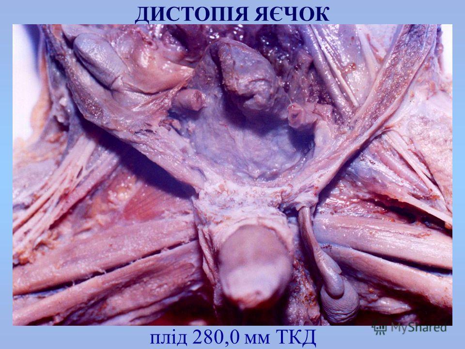 плід 280,0 мм ТКД ДИСТОПІЯ ЯЄЧОК