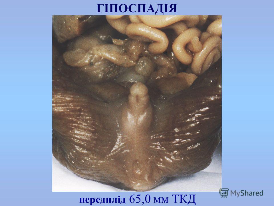 передплід 65,0 мм ТКД ГІПОСПАДІЯ