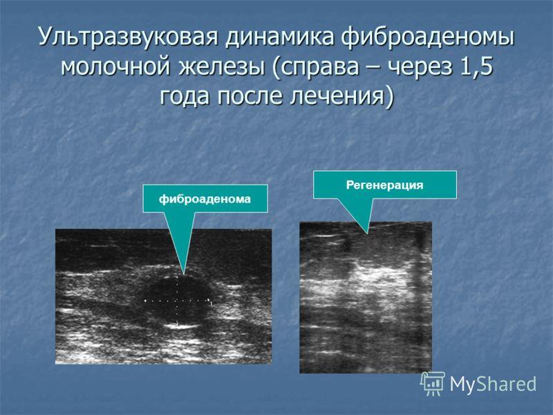 Ультразвуковая динамика фиброаденомы молочной железы (справа – через 1,5 года после лечения) фиброаденома Регенерация