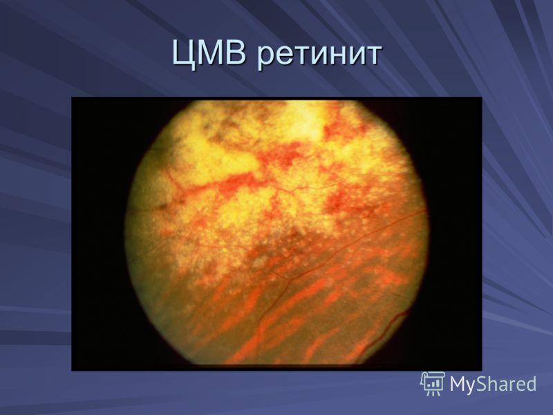 ЦМВ ретинит