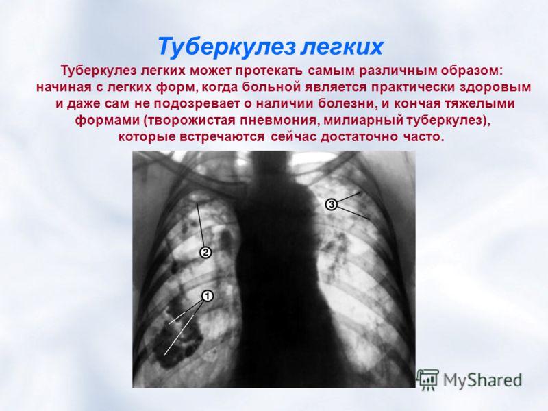 Туберкулез легких Туберкулез легких может протекать самым различным образом: начиная с легких форм, когда больной является практически здоровым и даже сам не подозревает о наличии болезни, и кончая тяжелыми формами (творожистая пневмония, милиарный т