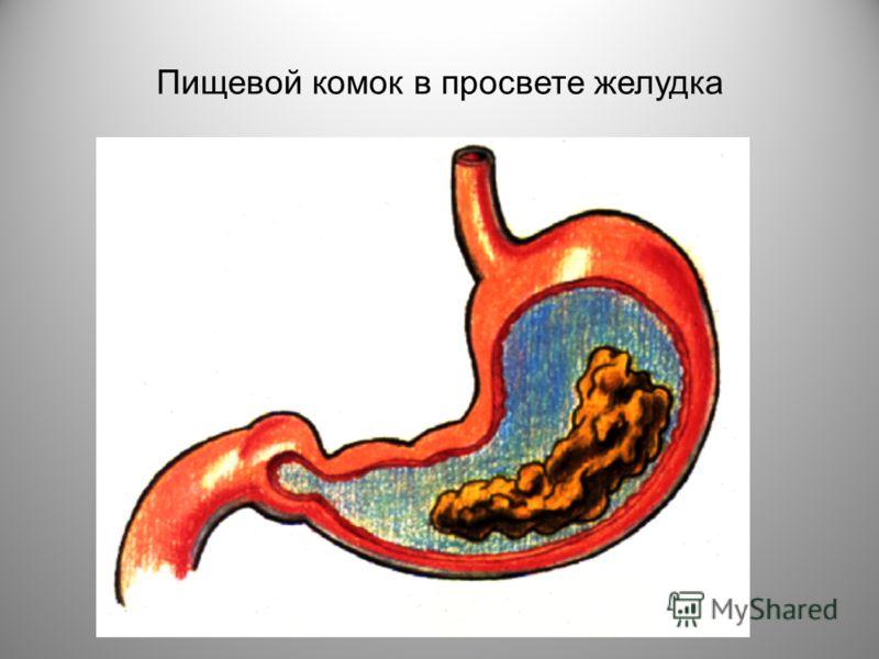 Пищевой комок в просвете желудка ru0599