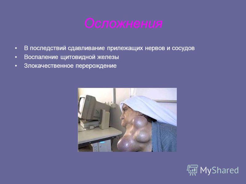 Осложнения В последствий сдавливание прилежащих нервов и сосудов Воспаление щитовидной железы Злокачественное перерождение