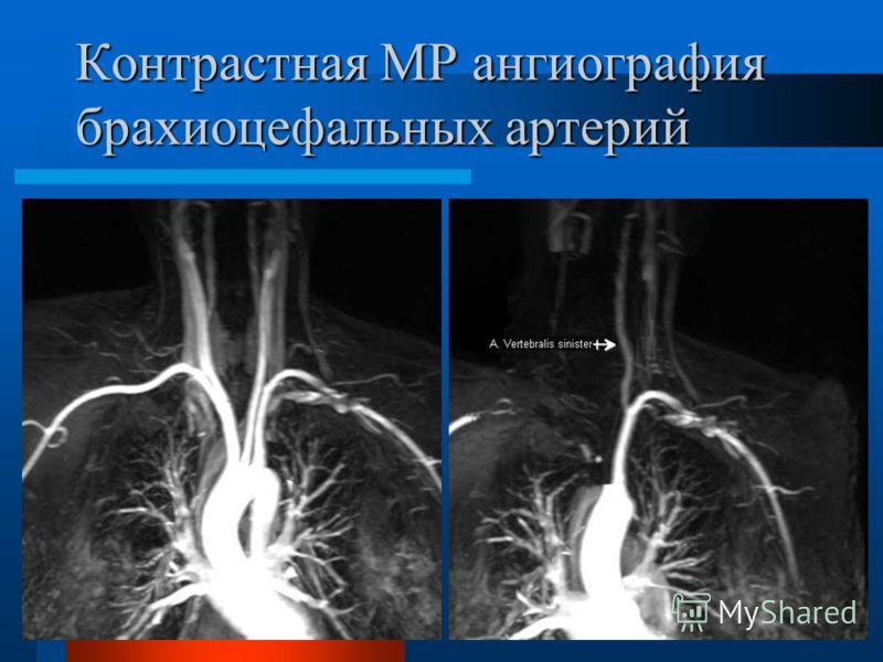 Контрастная МР ангиография брахиоцефальных артерий