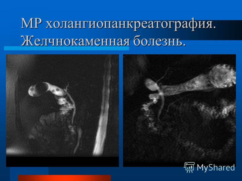 МР холангиопанкреатография. Желчнокаменная болезнь.