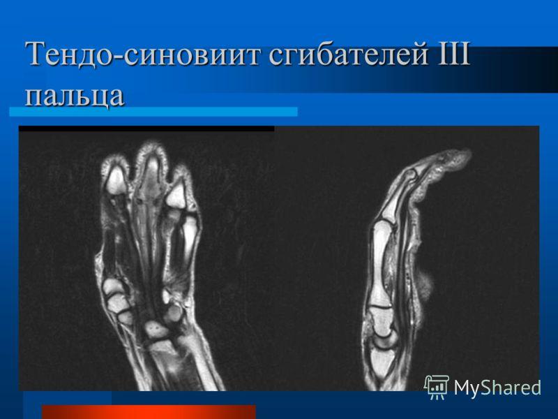 Тендо-синовиит сгибателей III пальца