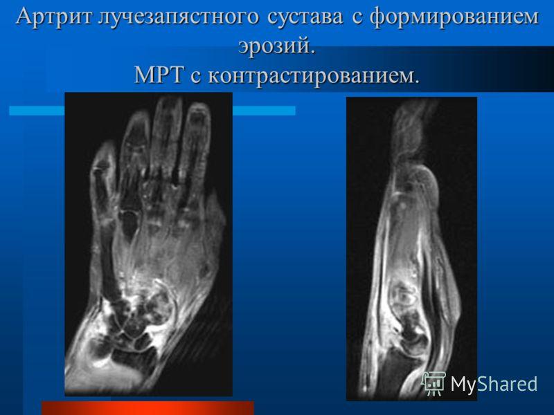 Артрит лучезапястного сустава с формированием эрозий. МРТ с контрастированием.