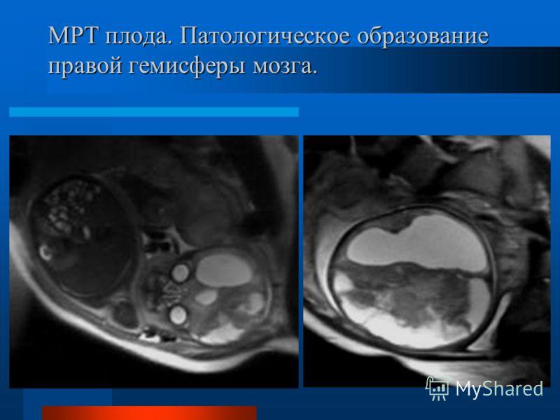 МРТ плода. Патологическое образование правой гемисферы мозга.