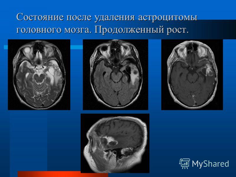 Состояние после удаления астроцитомы головного мозга. Продолженный рост.