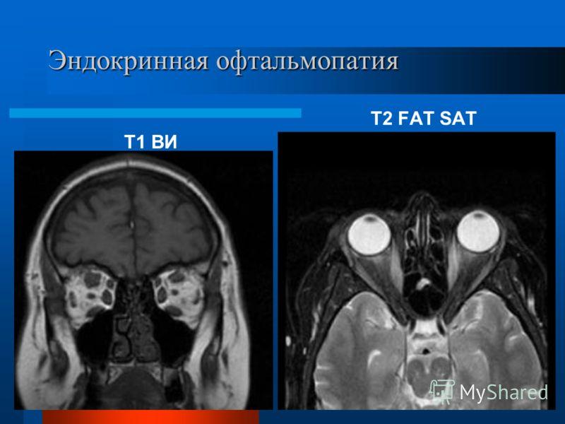 Эндокринная офтальмопатия Т2 FAT SAT Т1 ВИ