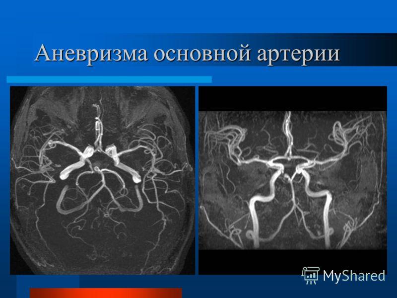 Аневризма основной артерии