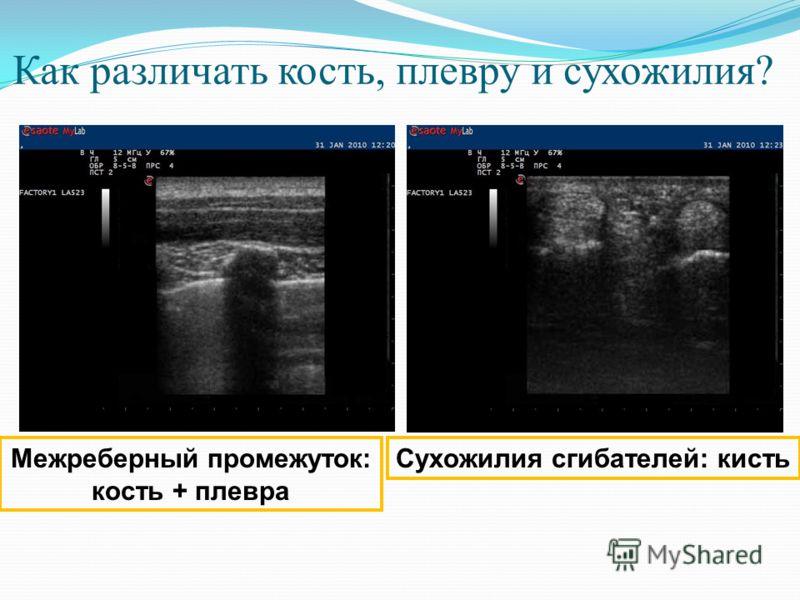 Как различать кость, плевру и сухожилия? Межреберный промежуток: кость + плевра Сухожилия сгибателей: кисть