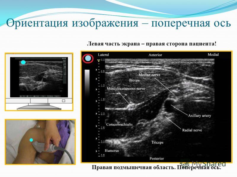 Ориентация изображения – поперечная ось Правая подмышечная область. Поперечная ось. Левая часть экрана – правая сторона пациента!
