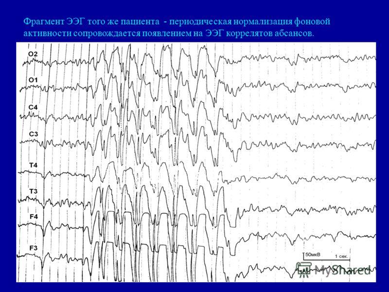 Фрагмент ЭЭГ того же пациента - периодическая нормализация фоновой активности сопровождается появлением на ЭЭГ коррелятов абсансов.